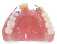 プラスチック義歯 (保険適用内)