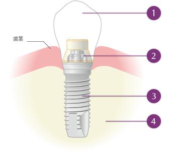 上部構造:人工歯