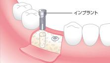 1次手術:下部構造の埋め込み