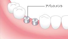 2次手術:再切開と治癒期間