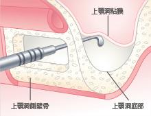 上顎洞側壁骨の除去と上顎洞粘膜の挙上