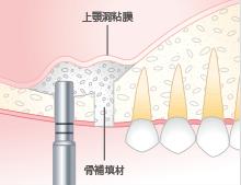 上顎洞粘膜の挙上と骨補填材の填入