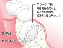 骨補填材の填入と縫合