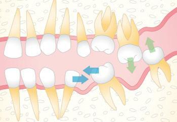 歯が失われ周辺の歯が移動した状態