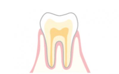 見た目には虫歯とわかりません。歯の表面の一部が白濁した状態です
