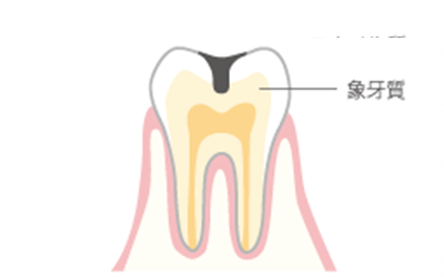 虫歯が象牙質まで進み、黒か茶色の穴があきます。水やお湯、甘いものがしみます。