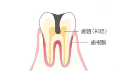 虫歯が歯髄(神経)まで進み、歯根膜に炎症が起こります。大きな穴があき、ズキズキ痛みます。