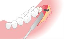 歯茎の切開
