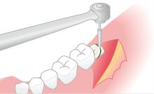 歯や骨の形を整える