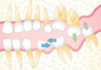 挺出:歯が失われ周辺の歯が移動した状態